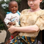 Black and White: The voice of people with albinism in Tanzania