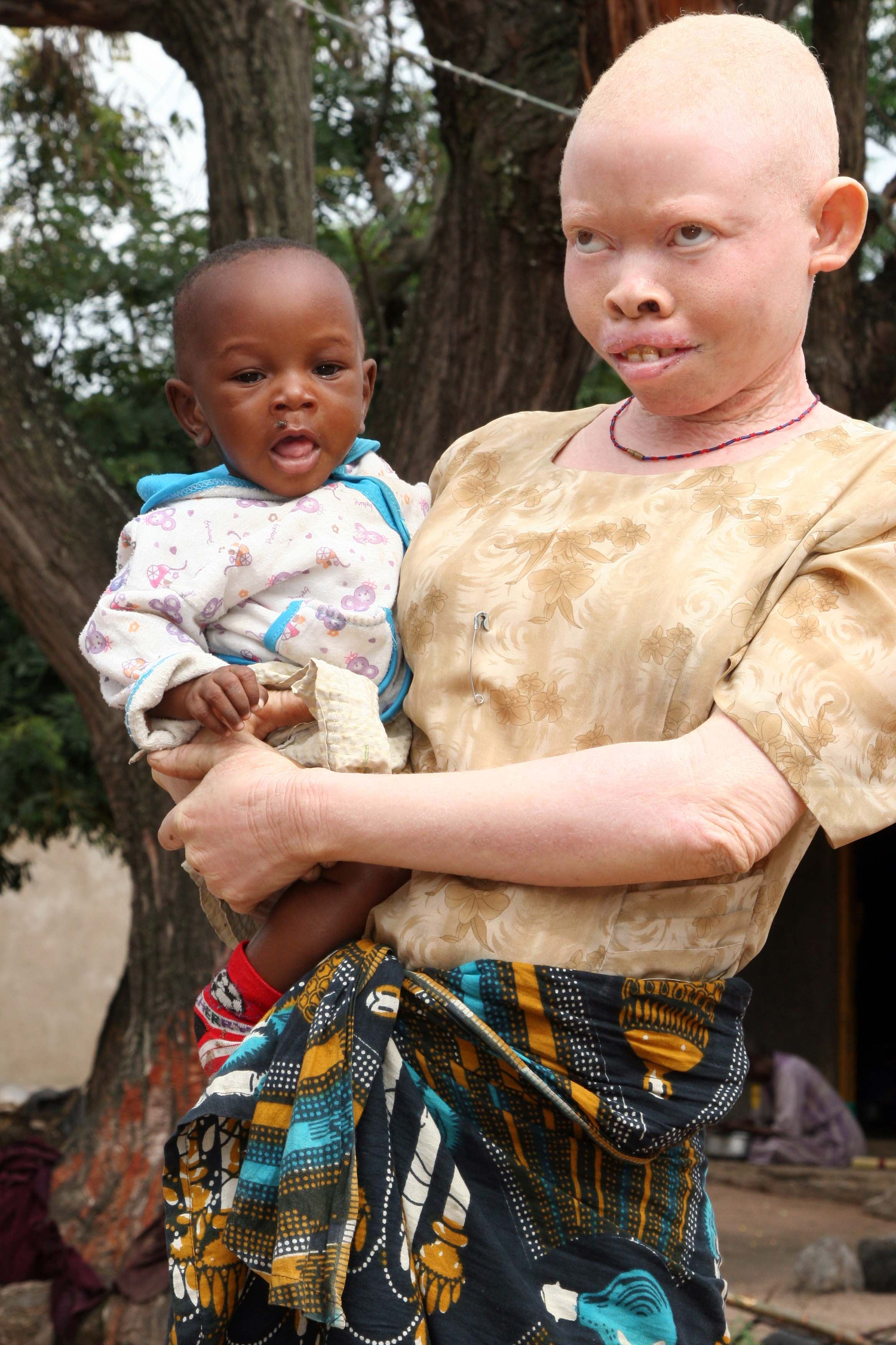 Albinos Black black and white: the voice of people with albinism in tanzania