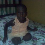 Ghana: Life without limbs… but ten year old amputee looks forward to the future with hope